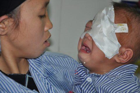 Xé lòng tiếng khóc của bé 2 tuổi bị ung thư võng mạc, nay đã bị khoét một bên