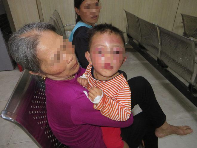 bé trai 2 tuổi mặt mũi bầm dập, người đầy thương tích nghi bị cha dượng bạo hành