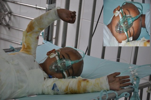 Xót thương 4 tuổi ngã vào nồi cám lợn nguy kịch tính mạng