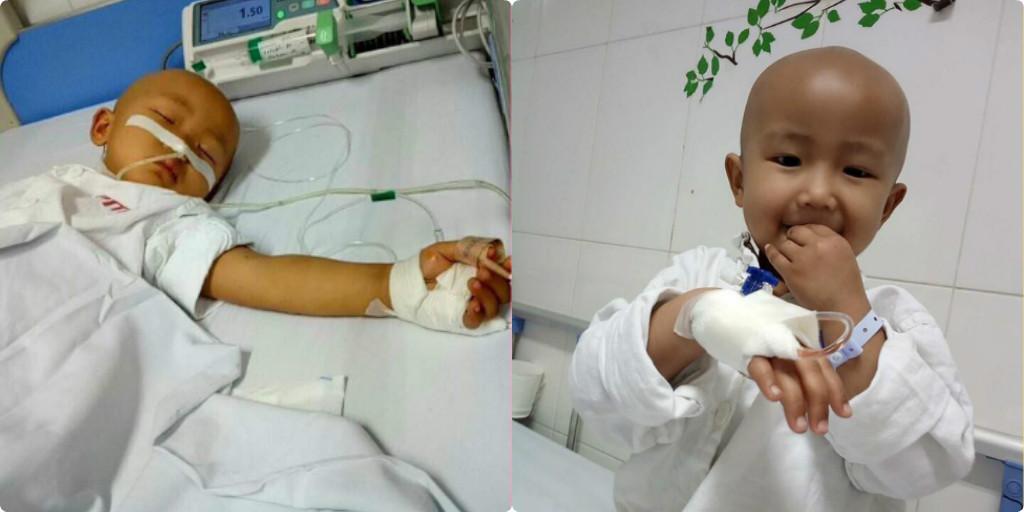 Xót thương bé gái mới 4 tuổi đã mang trong mình căn bệnh ung thư buồng trứng quái ác