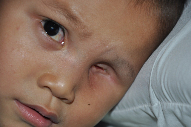 rơi nước mắt câu hỏi mắt con đâu của cậu bé 3 tuổi phải khoét bỏ bên mắt